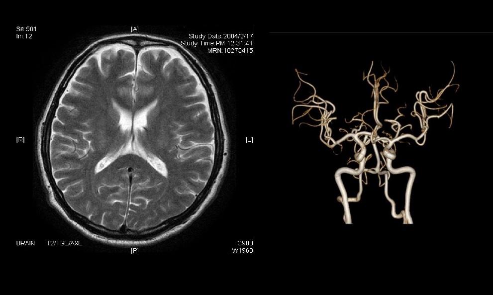 MRI検査がうるさい理由と対策